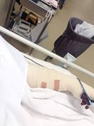 Bor Dinka Wrestling in Australia, broken arm