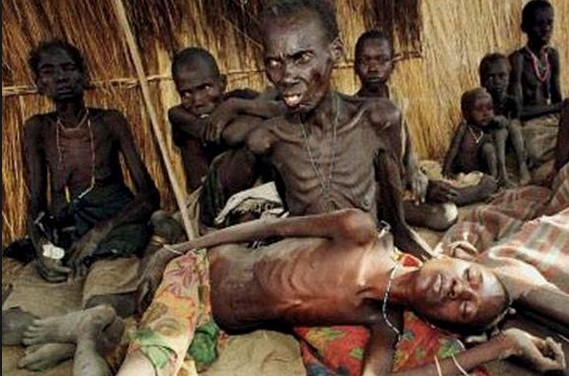 emaciated victims of the South Sudanese conflict